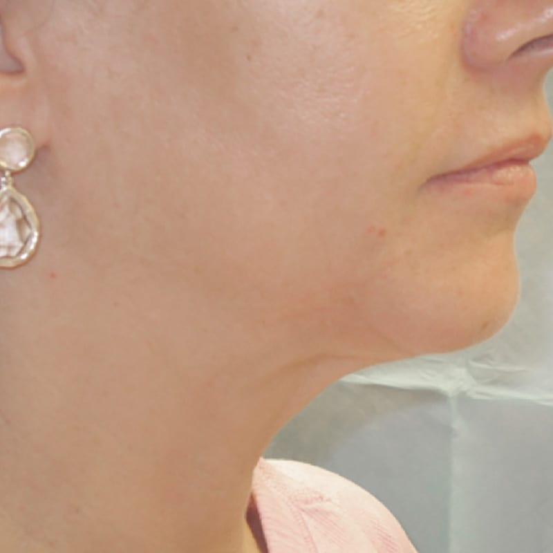 Dame nach der Behandlung zur Hautverjüngung in Konstanz