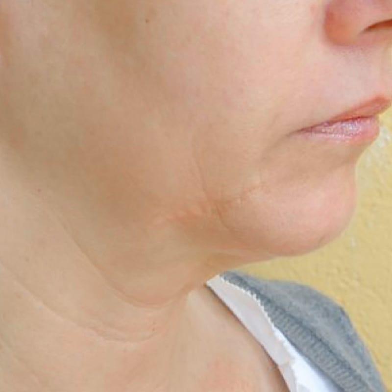 Dame vor der Behandlung zur Hautverjüngung in Konstanz