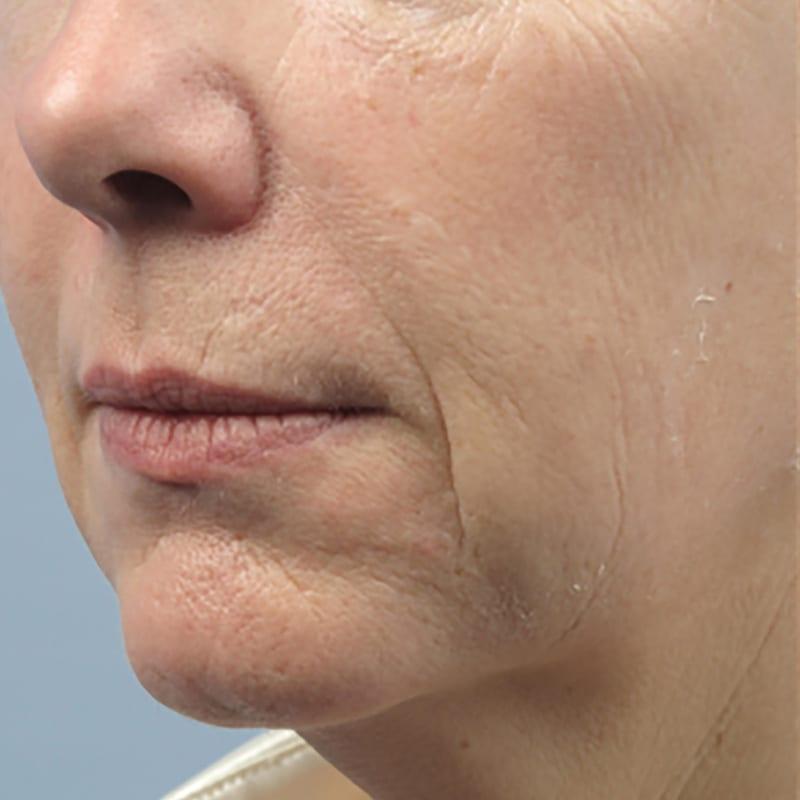 Frau vor der Behandlung zur Hautverjüngung in Konstanz