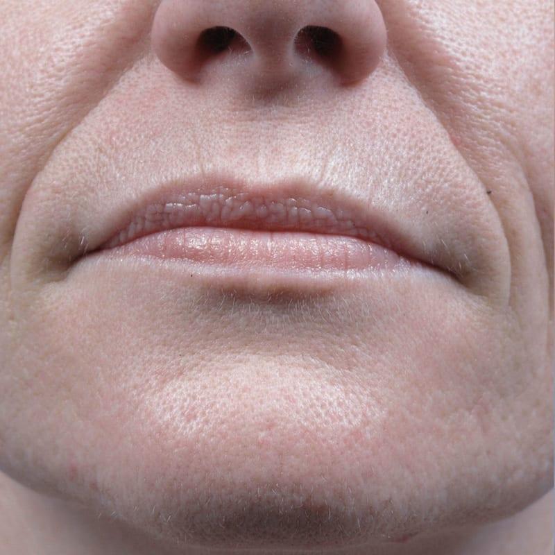 Hautverjüngung Konstanz - Dame vor der Behandlung
