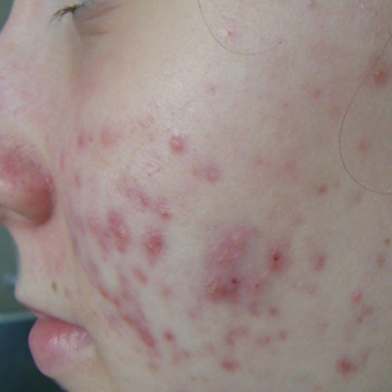 Akne und Anti-Aging Konstanz - Frau vor der Behandlung