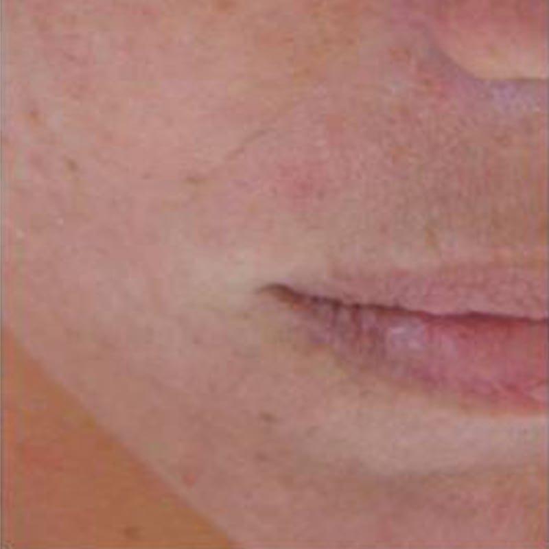 Anti-Aging Konstanz - Dame nach der Behandlung