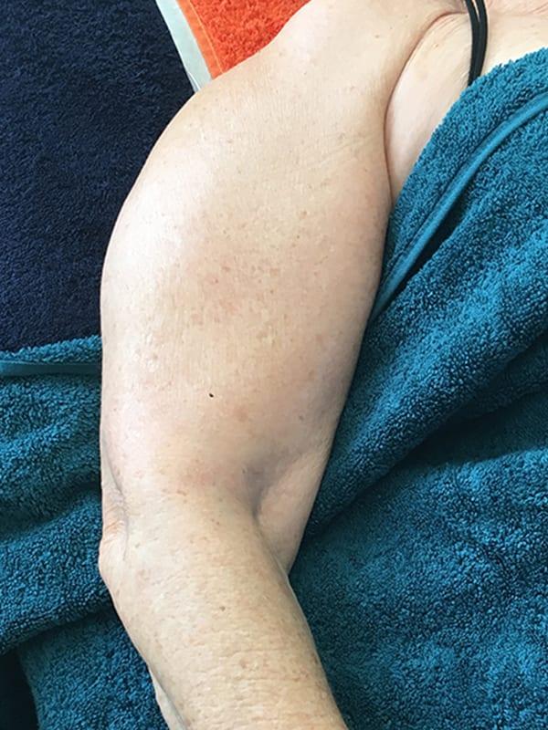 Arm nach der Cellulite-Behandlung in Konstanz