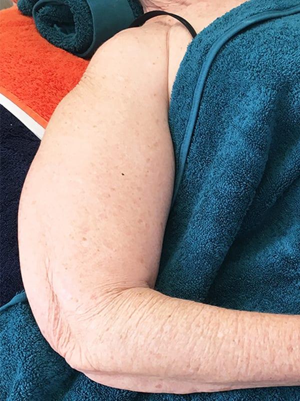 Arm vor der Cellulite-Behandlung in Konstanz