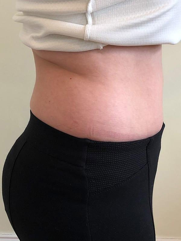 Bauch vor der Cellulite-Behandlung in Konstanz
