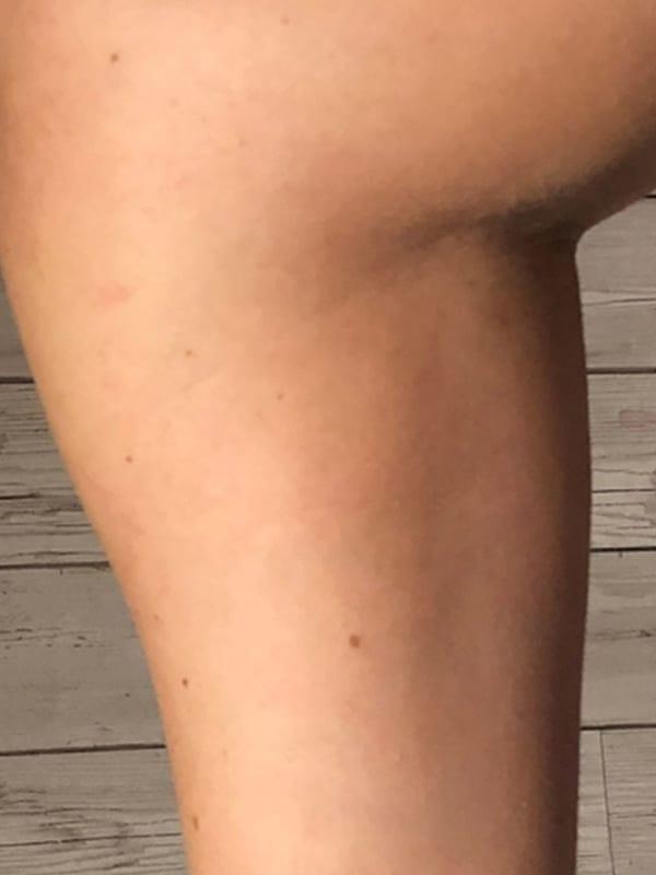 Bein nach der Cellulite-Behandlung in Konstanz