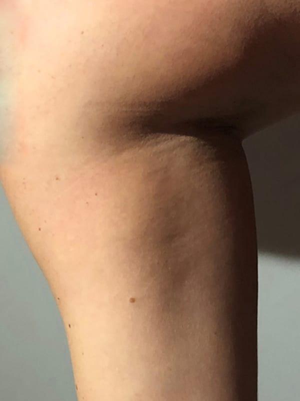 Bein vor der Cellulite-Behandlung in Konstanz