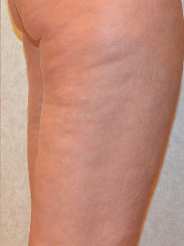 Body Contouring in Konstanz - Beine nach der Behandlung