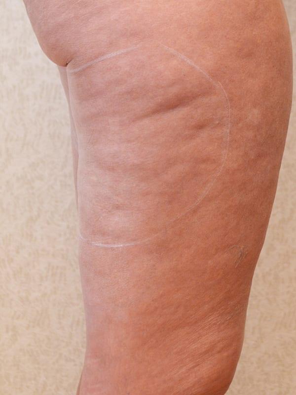 Body Contouring in Konstanz - Beine vor der Behandlung