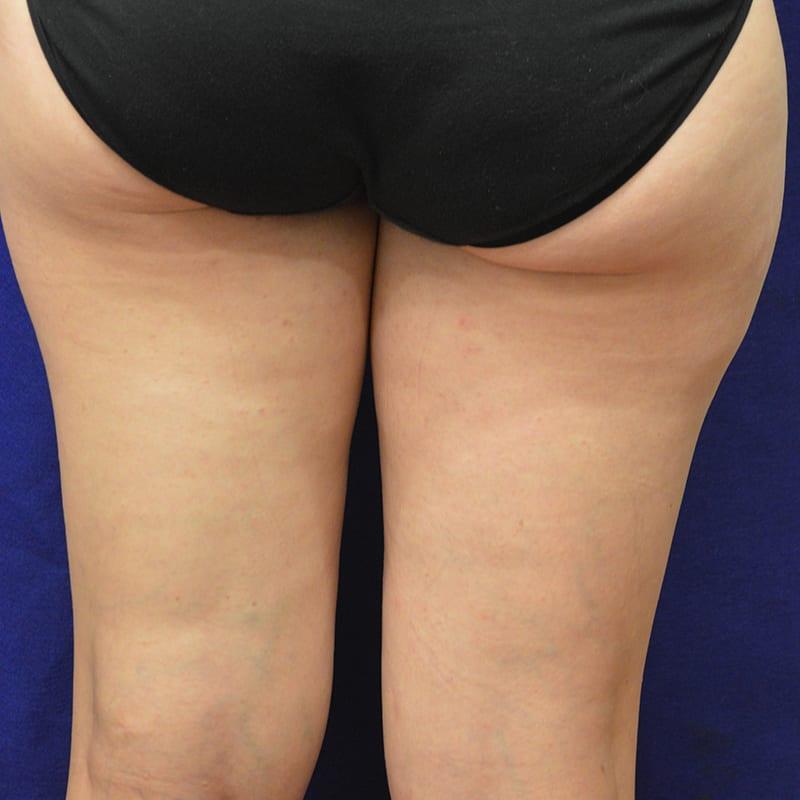 Direkte Ansicht von Beinen nach der Behandlung für Body Contouring in Konstanz