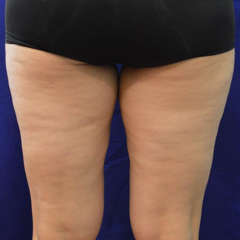 Direkte Ansicht von Beinen vor der Behandlung für Body Contouring in Konstanz