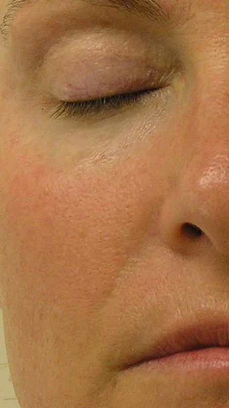 Direkte Ansicht von Gesicht nach der Behandlung mit HydraFacial in Konstanz