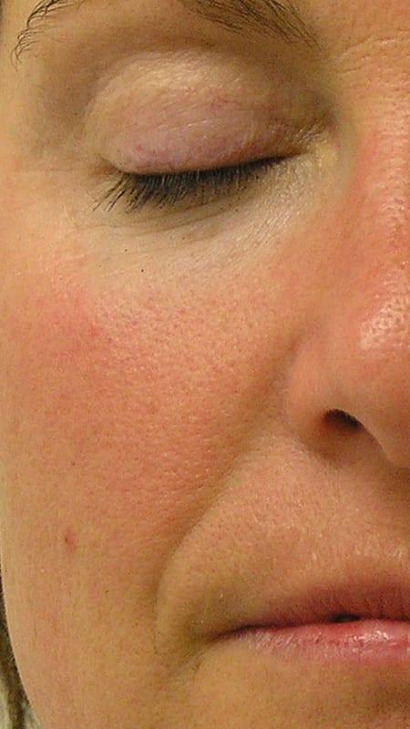 Direkte Ansicht von Gesicht vor der Behandlung mit HydraFacial in Konstanz