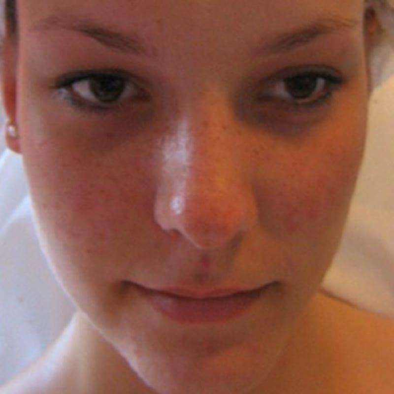 Frau nach der Behandlung für Anti-Aging in Konstanz