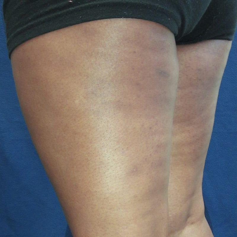 Haut nach der Behandlung für Body Contouring in Konstanz