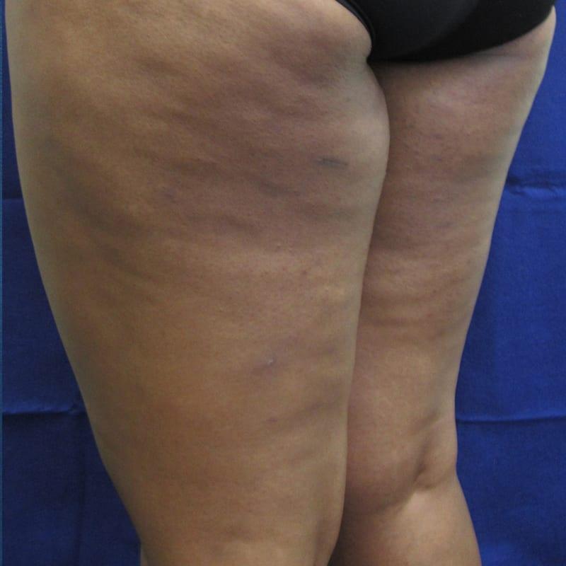 Haut vor der Behandlung für Body Contouring in Konstanz