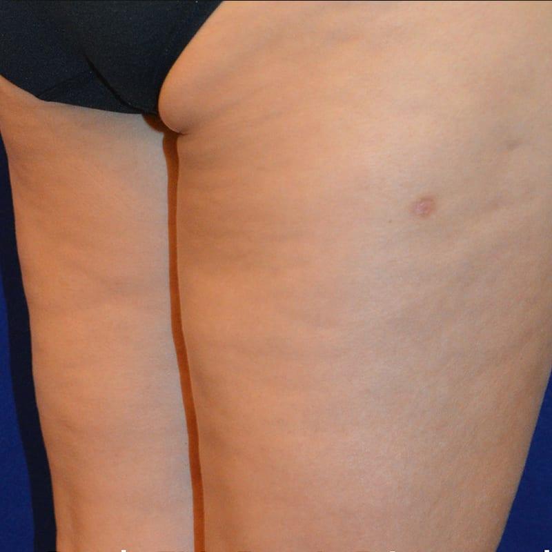 Seitliche Ansicht von Beinen nach der Behandlung für Body Contouring in Konstanz