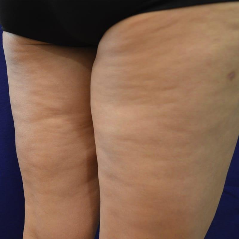 Seitliche Ansicht von Beinen vor der Behandlung für Body Contouring in Konstanz