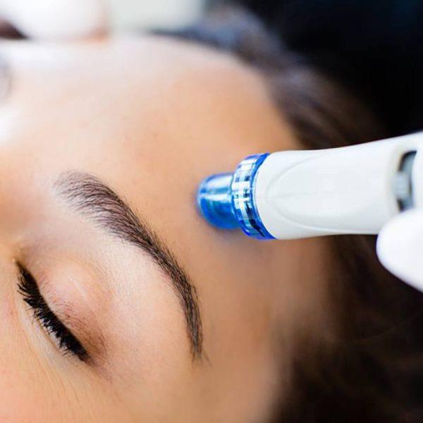 Dame in Konstanz wird mit HydraFacial an der Stirn behandelt